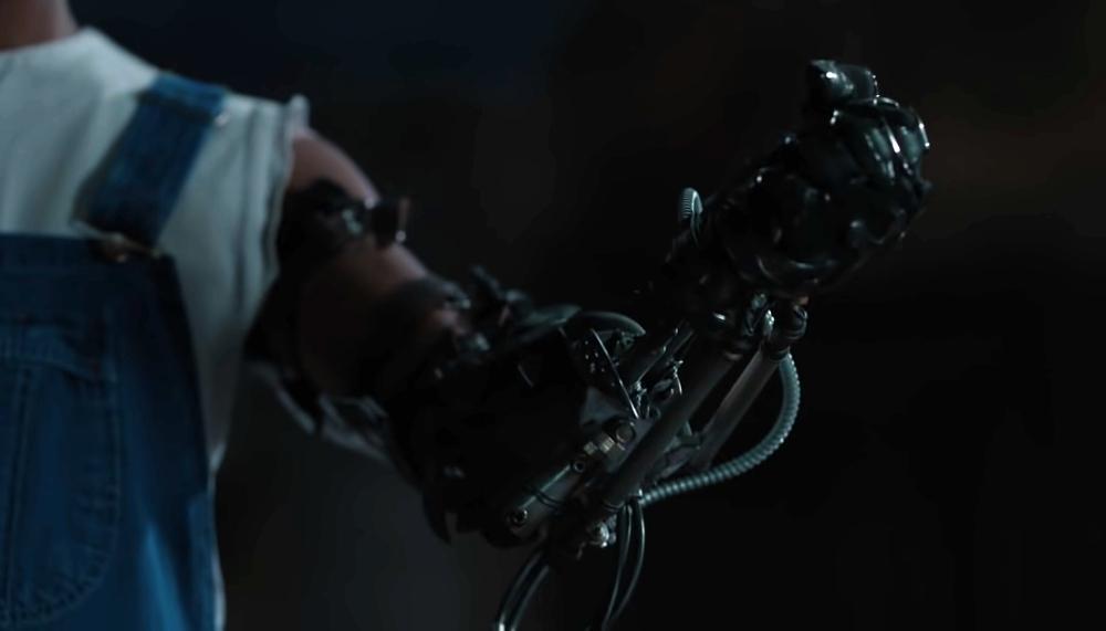 Nuevo brazo de Diana